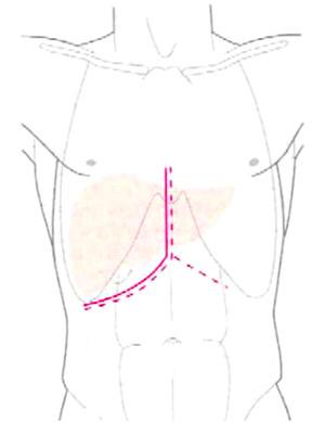 behandelingen-figuur-02